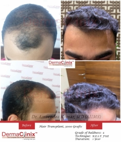 4 Little Known Facts About Hair Transplant