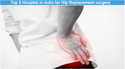 Top 5 Hospital in India for Hip Replacement surgery