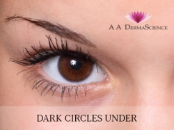Dark Circles under - AA Derma Science Dermatology Clinic