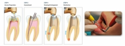 Best Dental Clinic for Root Canal Treatment in Gurgaon