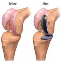 Best Joint Replacement Surgeon in Delhi - Dr. Anil Raheja